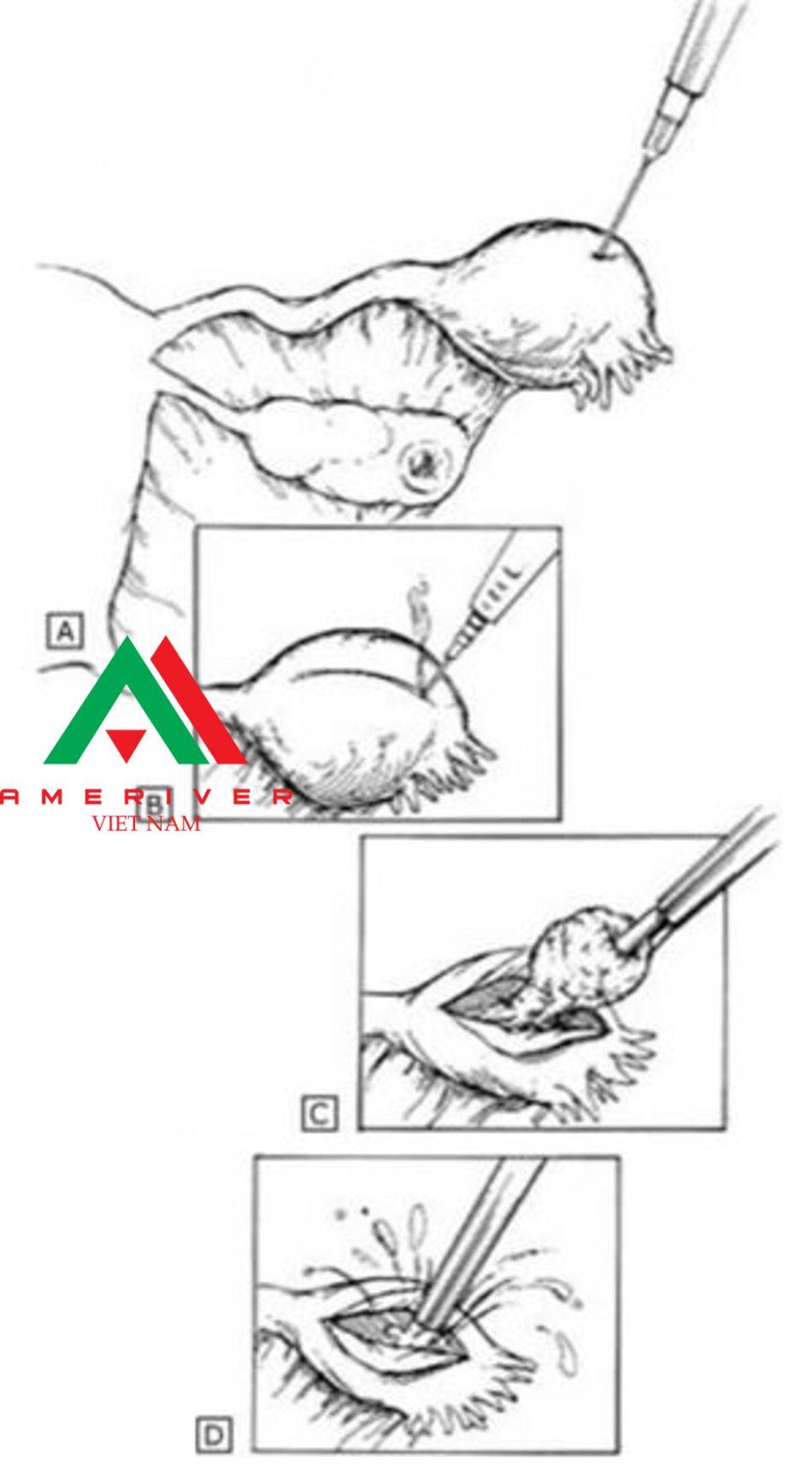 (A)CỐ định ống và tiêm dung dịch vasopressin pha loãng. (B) Tạo một đường rạch ở bờ đối bên mạc treo trên khối thai. (C) Lấy bo các sản phâm cúa quá trình thụ thai bằng cách sử dụng kẹp không gây chấn thương. (D) Vị trí thai làm tổ được tưới rửa và thực hiện cầm máu.