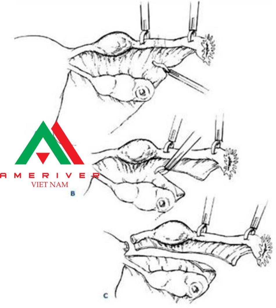 Kẹp lường cực được dùng để đốt điện phần inạc treo (A), sau đó dùng kéo cắt phần mạc treo (B), và ống dẫn trứng được lấy bò (C).