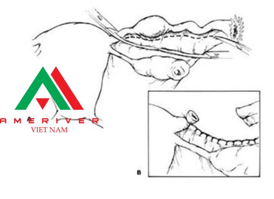 (A)Kỹ thuật cắt bỏ toàn bộ ổng dần trứng trong phẫu thuật mở bụng. (B) Cắt và khâu thắt mạc treo ống dần trứng trong phẫu thuật mờ bụng.