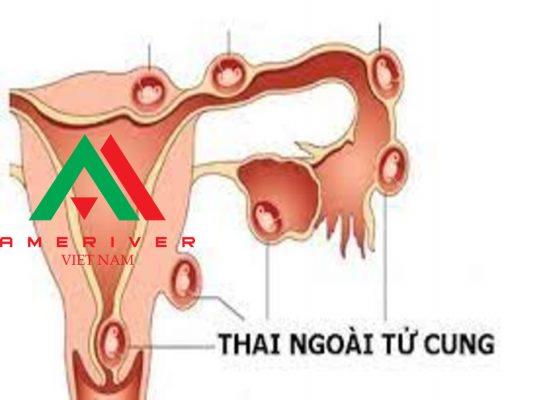 Thai ngoài tử cung: Điều trị ngoại khoa