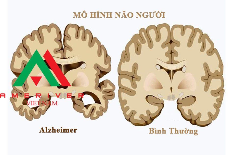 Các biến chứng của bệnh Alzheimer