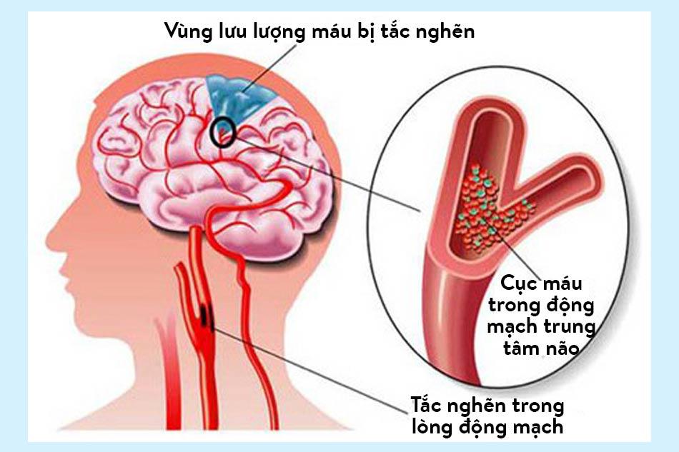 Đột quỵ nhồi máu não