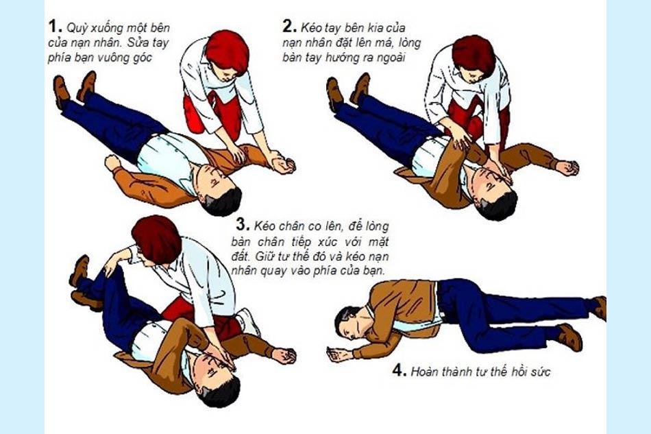 Cách sơ cứu khi bệnh nhân bị đột quỵ tại nhà