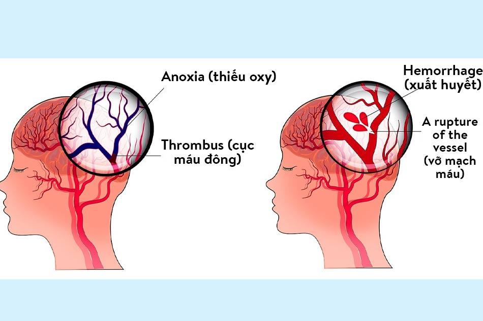 Đột quỵ nhồi máu não và đột quỵ xuất huyết não