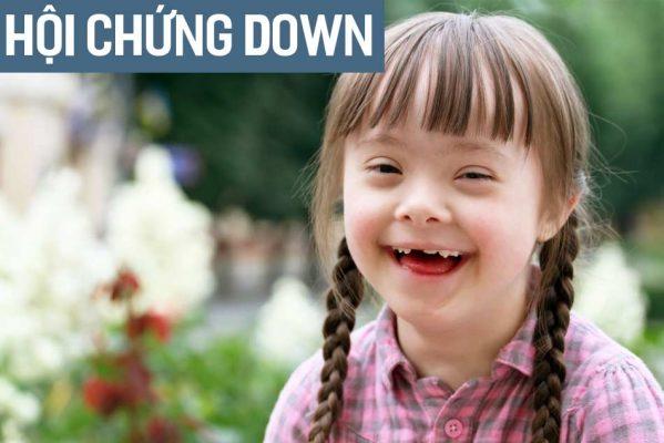 Hội chứng Down là gì? Nguyên nhân, biểu hiện, cách điều trị