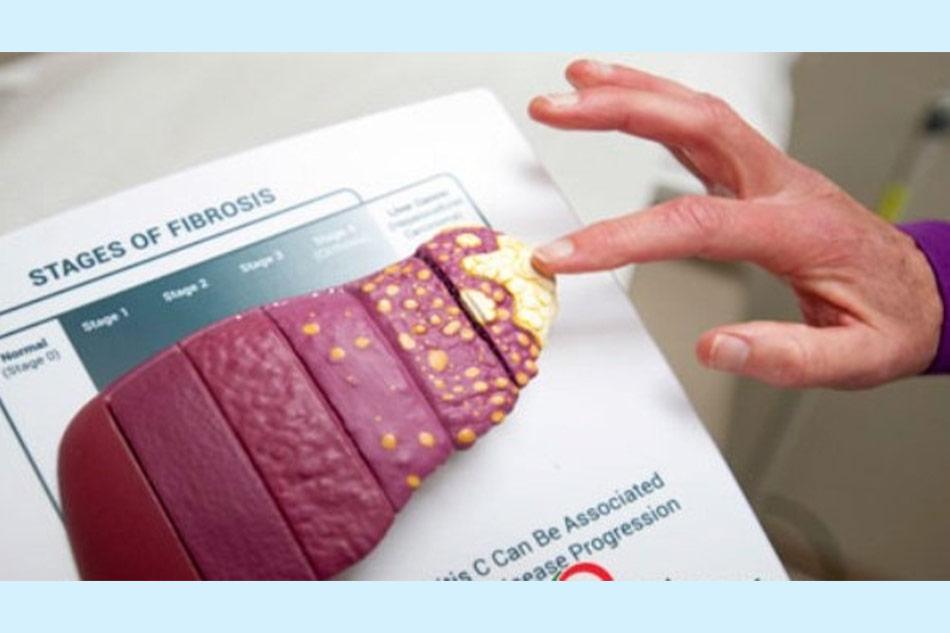 Các biến chứng nguy hiểm của gan nhiễm mỡ là gì?