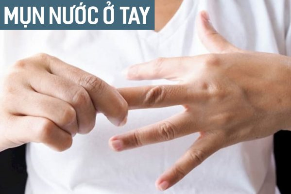 Nổi mụn nước ở tay là bệnh gì? Nguyên nhân, triệu chứng, cách điều trị