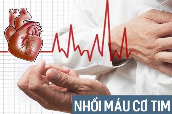 Nhồi máu cơ tim: Nguyên nhân, triệu chứng, cách cấp cứu và điều trị