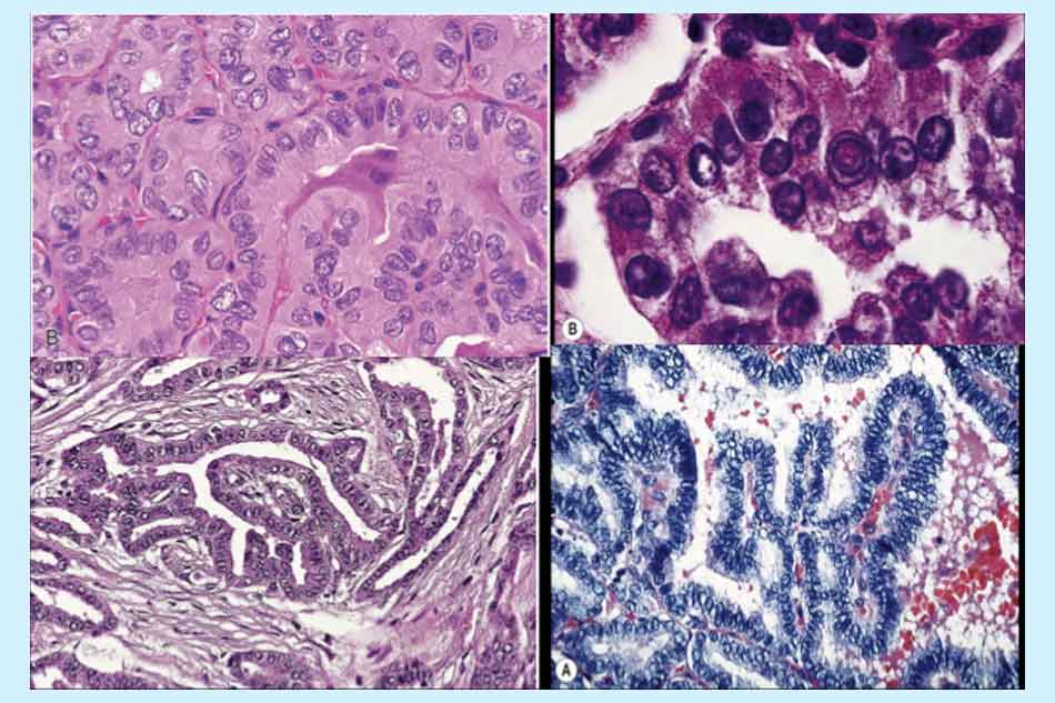 Hình ảnh vi thể carcinôm tuyến giáp dạng nhú